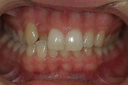 crooked tooth fixed with 6 month Braces in Adelaide