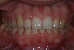 Hidden cheaper  braces straightening teeth quickly