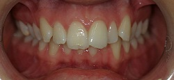 White braces rapidly straightening teeth without Invisalign
