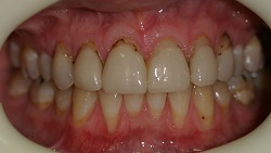 Adelaide Porcelain Veneers Before