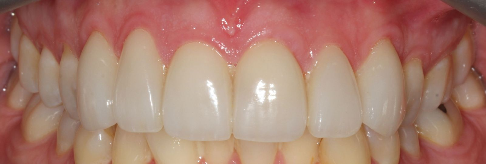 Close spaces with Invisalign