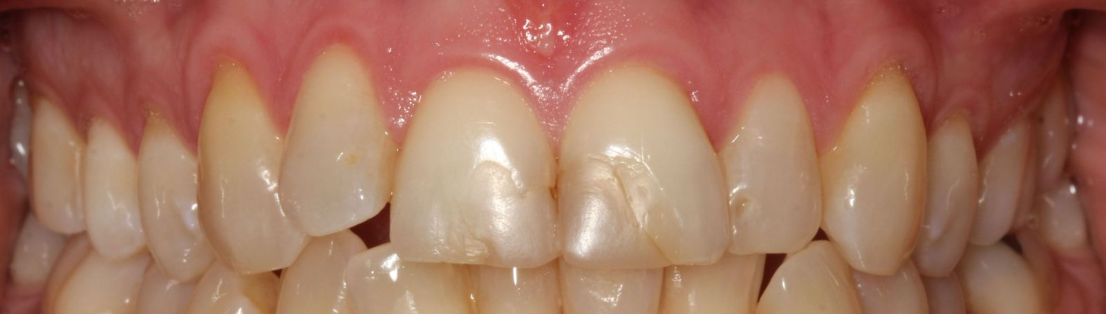 Close gaps with Invisalign