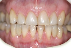 Porcelain Teeth to replace gaps in Adelaide