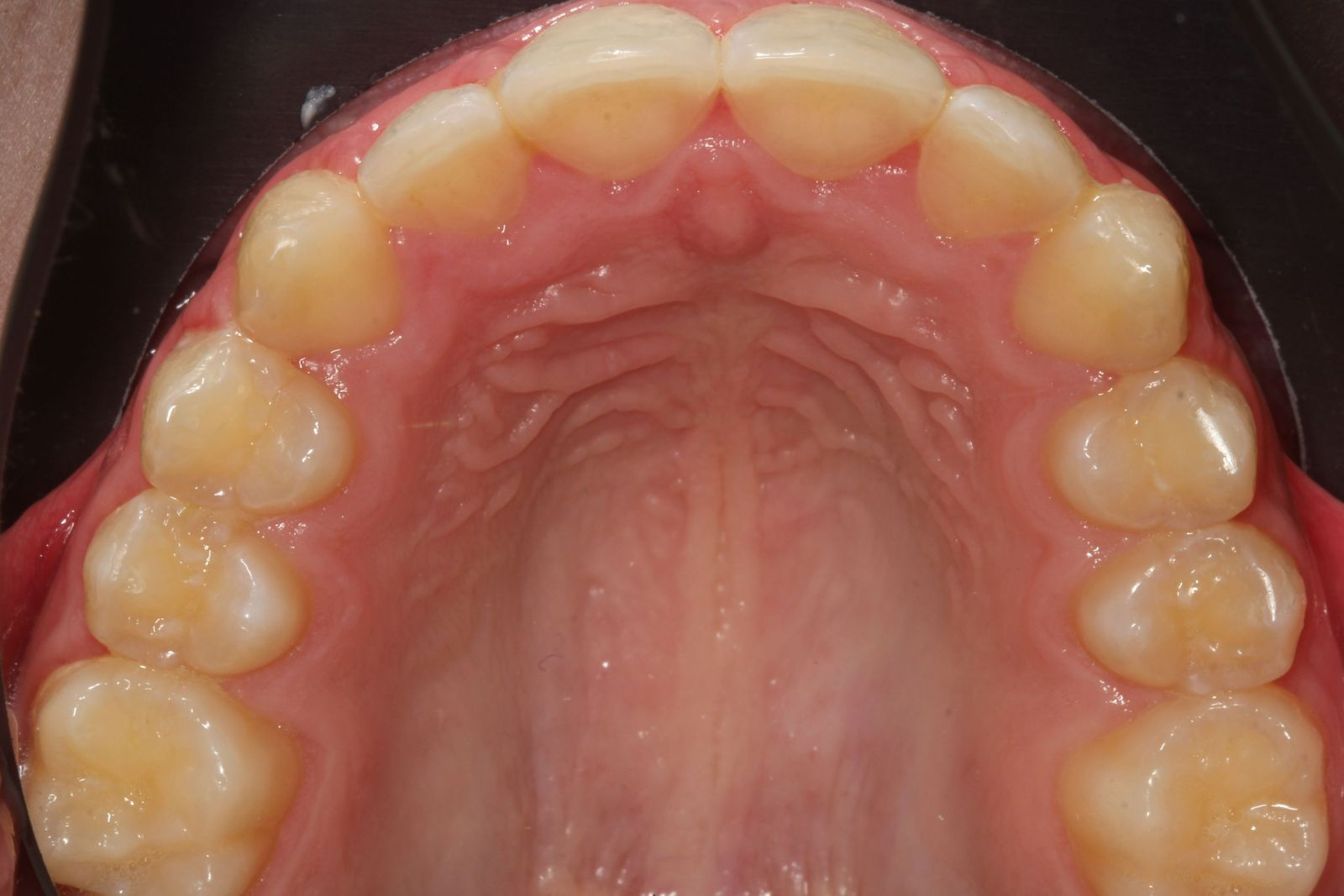Upper teeth after Invisalign