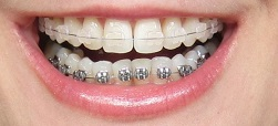 Clear teenager braces