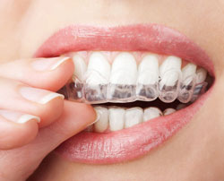 Invisalign to close spaces