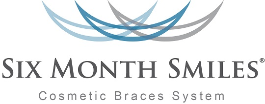 Rapid Smile Braces
